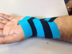 3 Things You May Not Know About Kinesiotaping Tapes