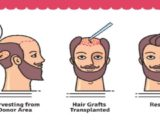 hair transplant in ahmedbad gujarat