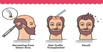 Hair Transplant Cost Procedures And Facts