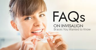 FAQs on Invisalign Braces You Wanted to Know