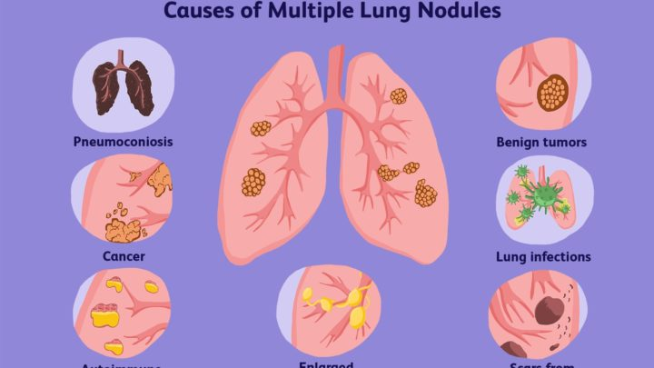 What Is Pulmonary Nodule ICD 10? Investigating The Causes and Their Determination